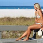 Verbrande huid snel genezen met deze 5 tips